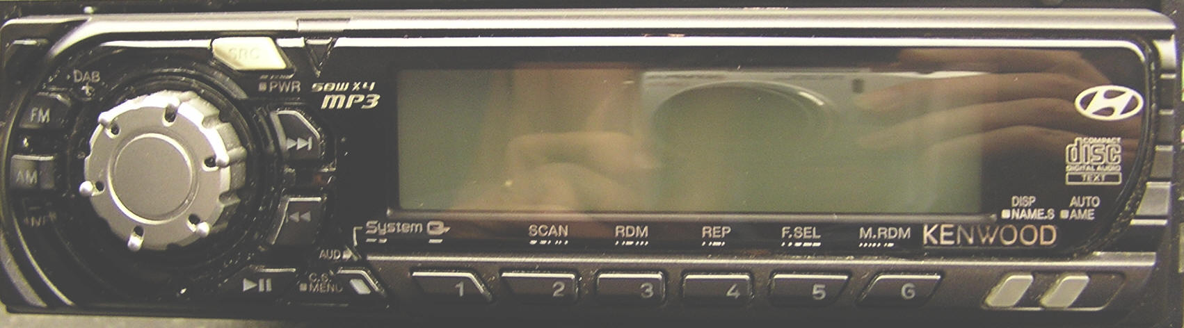 Hyundai Elantra Car Stereo Removal and Repair